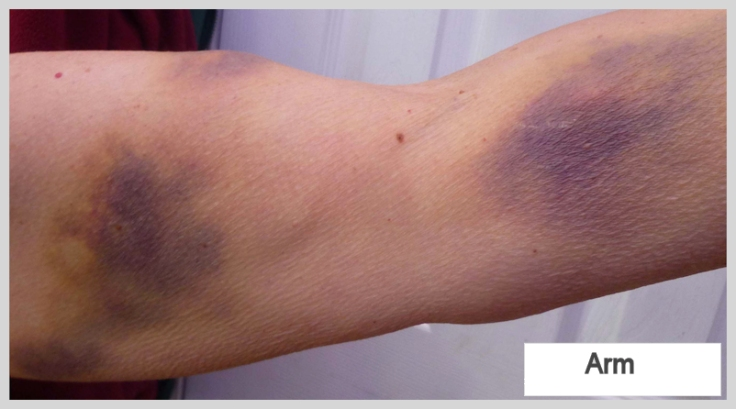 severe bruising after being trampled by cattle